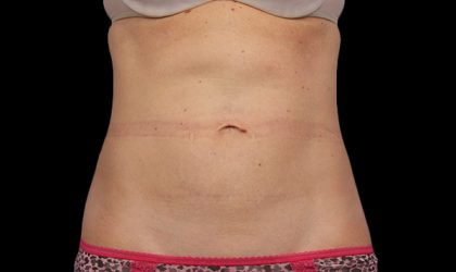 Abdomen Before & After Patient #302