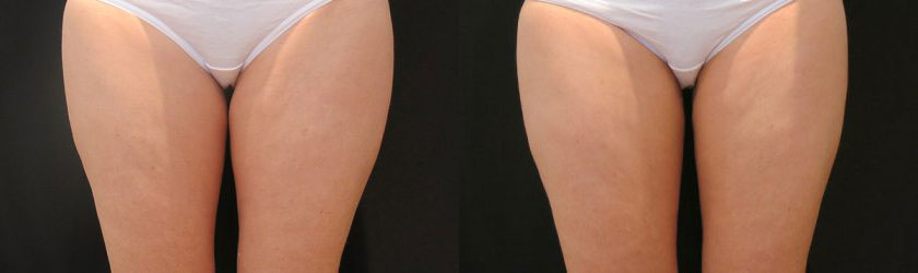Thighs CoolSculpting | Thigh Gap Before and After Photos