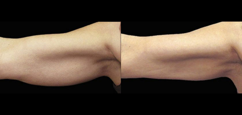Arms Coolsculpting Arms Before And After Photos Cost