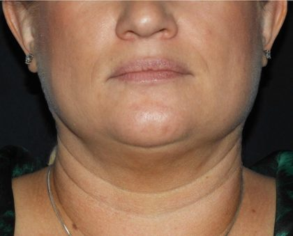 Chin Before & After Patient #1003