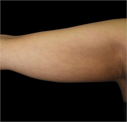 Upper Arms Before & After Patient #992