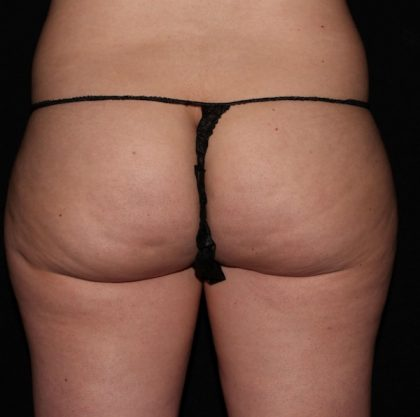 Thigh Before & After Patient #1036