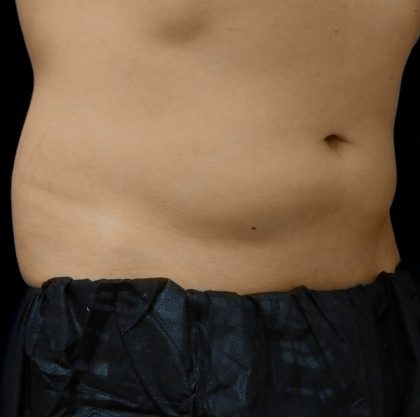 Abdomen Before & After Patient #963