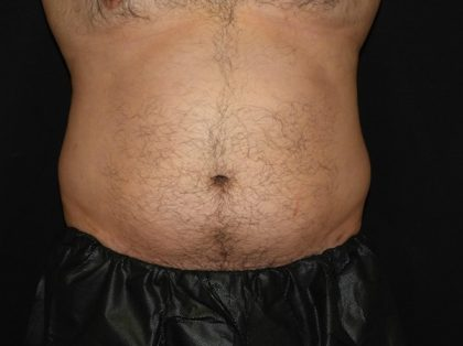 Abdomen Before & After Patient #968