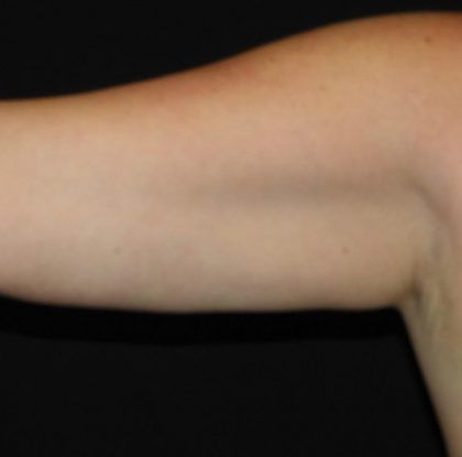 Upper Arms Before & After Patient #997