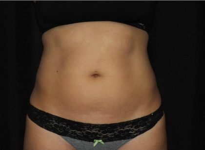 Abdomen Before & After Patient #921