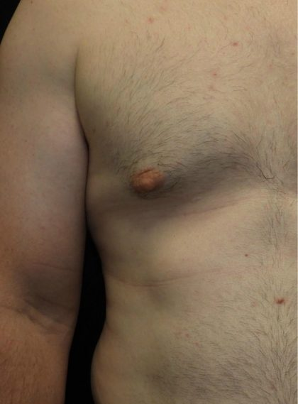 Male Chest Before & After Patient #1029