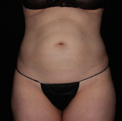 Abdomen Before & After Patient #931