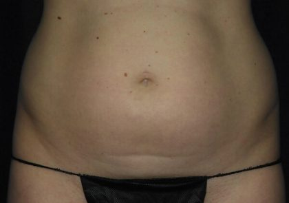 Abdomen Before & After Patient #943