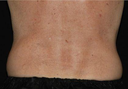Abdomen Before & After Patient #1130