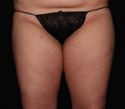 Thigh Before & After Patient #1118