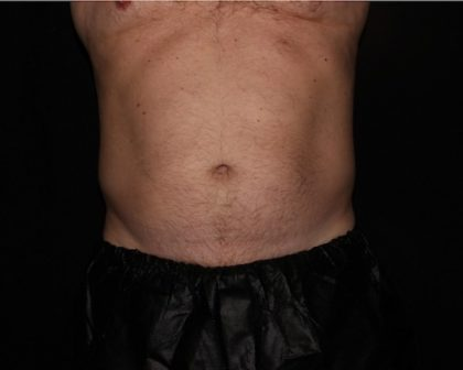 Abdomen Before & After Patient #1160