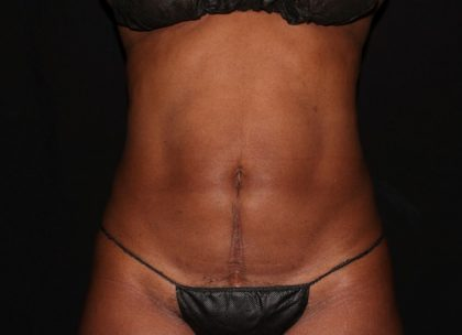 Abdomen Before & After Patient #1190