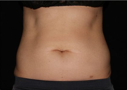Abdomen Before & After Patient #1165