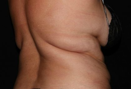 Back/Bra Fat Before & After Patient #1168