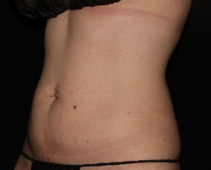 Abdomen Before & After Patient #1204