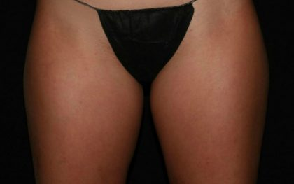 Thigh Before & After Patient #1148