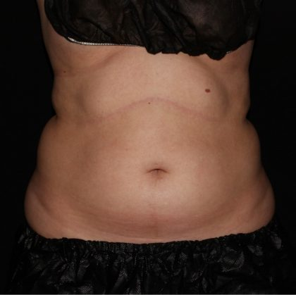 Abdomen Before & After Patient #1324