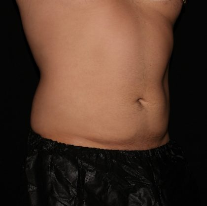 Abdomen Before & After Patient #1367