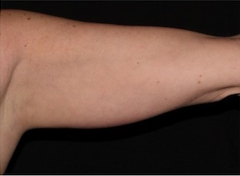 Upper Arms Before & After Patient #1327