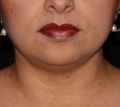 Chin Before & After Patient #1385