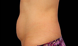 CoolSculpting Stomach/Abdomen – Before and After, Reviews, Cost