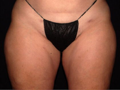 Thigh Before & After Patient #1861