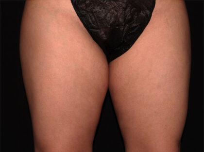 Thigh Before & After Patient #1938