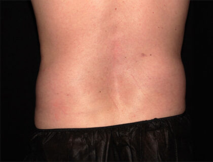 Flank / Side Before & After Patient #1927